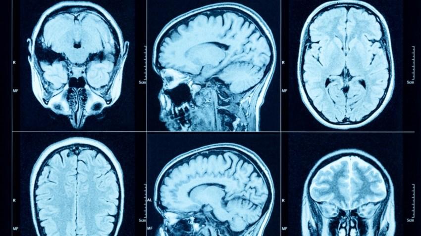 TLMD-cerebro-shutterstock_415540480-