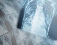 asma-1