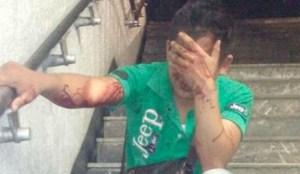Mujer golpea y hace sangrar a presunto acosador