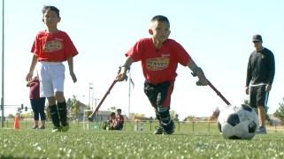 En muletas...el sueño de niño futbolista con mal congénito