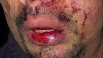 En video: brutal ataque a joven hispano en Garden City