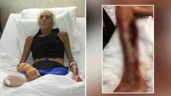 Queda sin una pierna por la temible bacteria comecarne