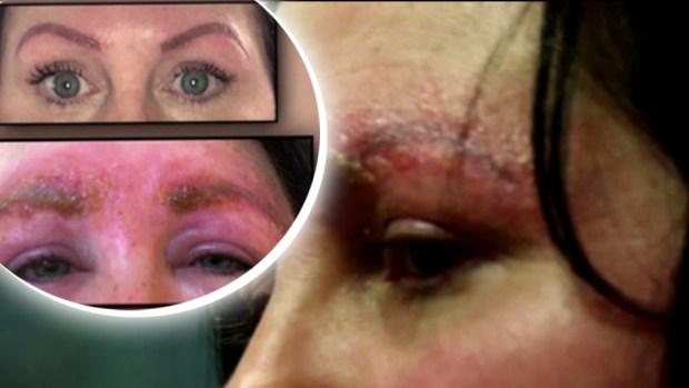 """[TLMD - NATL] El peligro oculto del tatuaje de cejas o """"microblading"""""""