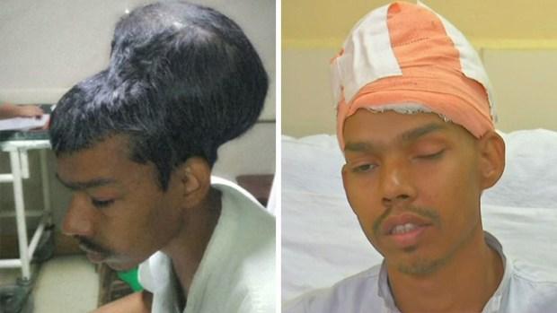 Milagrosa operación: le remueven tumor cerebral de más de cuatro libras