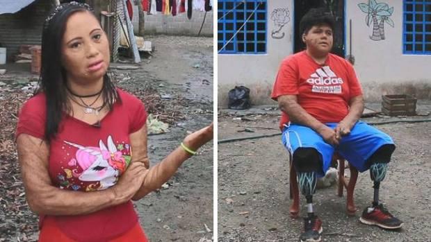 """""""Huachicoleo"""" marca sus cuerpos para siempre"""