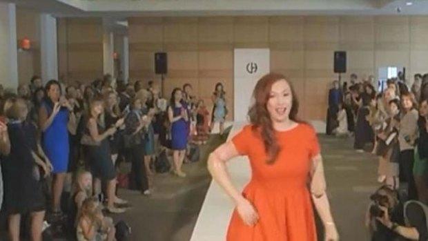 Video: Hispana desfila sin brazos ni piernas