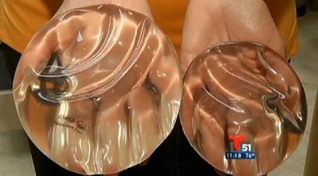 Video: Los implantes de seno y el cáncer